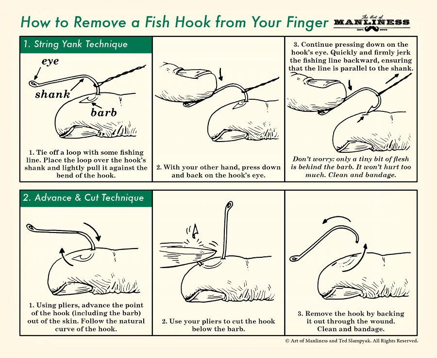 How-to-remove-a-hook-